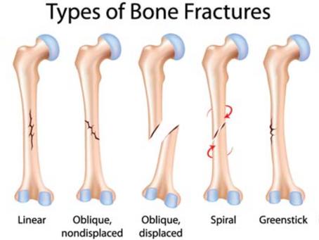 6 Hal yang Perlu Diketahui Mengenai Cedera Tulang