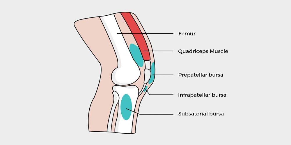 Diagram Lutut dengan Bursitis
