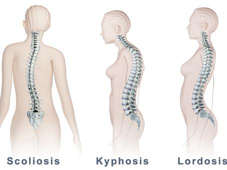 3 Jenis Kelainan Tulang Belakang yang Penting Anda Ketahui