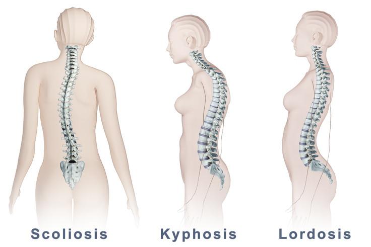 Perbedaan antara Kelainan Punggung Skoliosis, Kifosis, dan Lordosis
