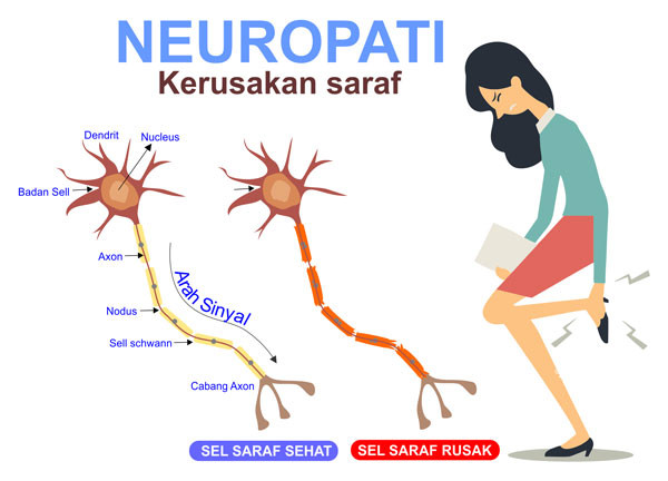 Perbedaan Saraf Sehat dan Rusak Neuropati