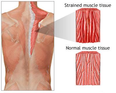 Perbedaan antara Otot Normal dan Otot yang Cedera