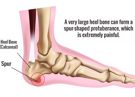 Apa itu Osteofit? Apa Gejala & Bagaimana Pengobatannya?