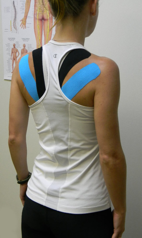Kinesio Taping Method at Precision sports medicine