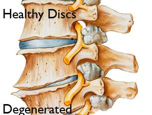 Degenerative Disc Disease (DDD)