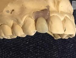 Implant crown on model at MBM Dental