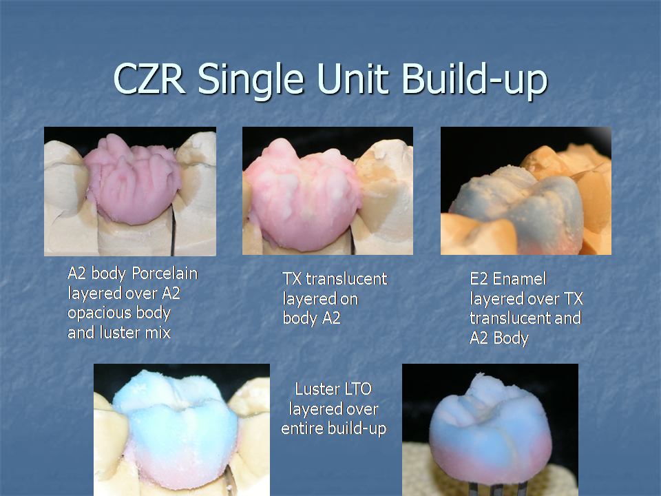 CZR Single Unit Build-Up
