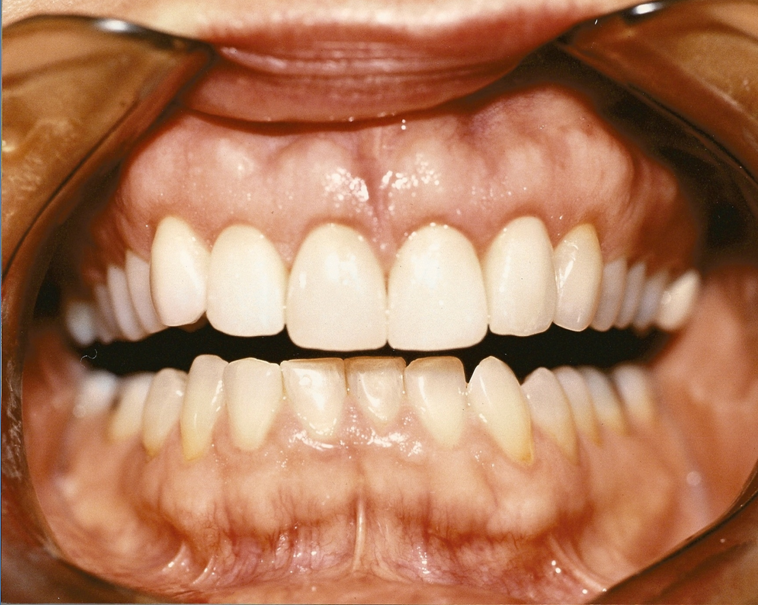 RETRACTED-SMILE-VIEW