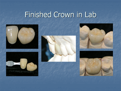 Finished Crown in Lab