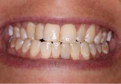Implant inserted at Brickworks Denta