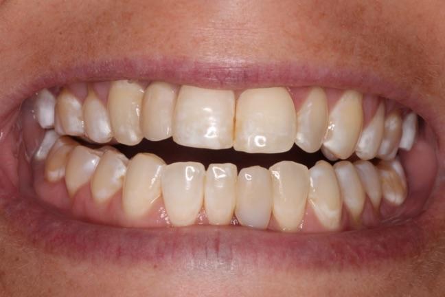 Smile implant inserted at Brickworks