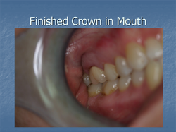 Finished Crown in Mouth