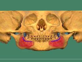 (figure 1) skullpan_ramus_300.jpg