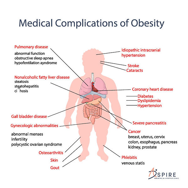 Medical-Complications-of-Obesity.jpg
