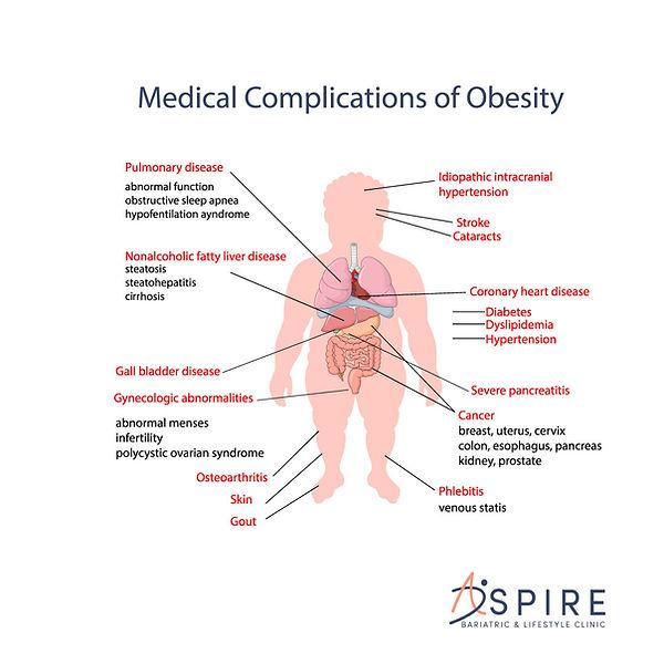 Medical-Complications-Obesity.jpg
