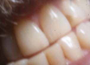 digital teeth.jpg