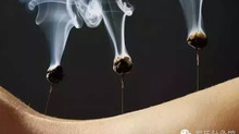 Warming Needles | The Perfect Combination of Acupuncture and Moxibustion