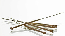 TCM Acupuncture vs Western Medicine | What is acupuncture good for