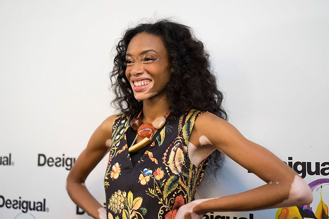 Model Winnie Harlow, who has vitiligo and different colours on the skin, poses and smiles to the camera.
