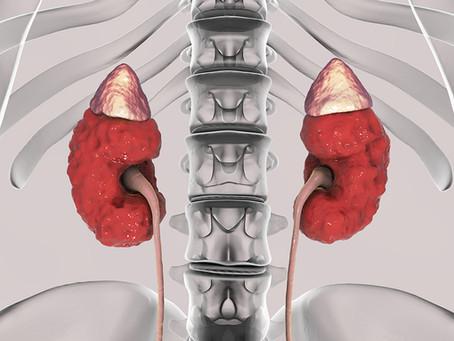 Researchers Reverse Vascular Calcification in Chronic Kidney Disease Animal Model