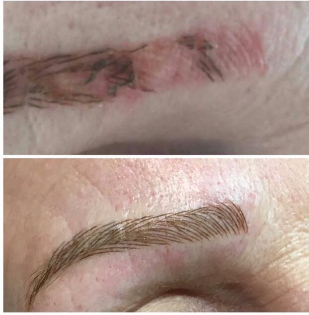 What should you know about microblading?