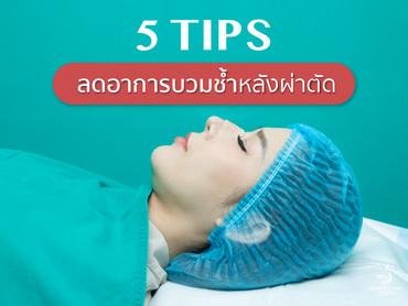 5 Tips ลดอาการบวมช้ำหลังผ่าตัด