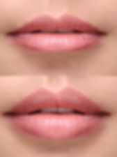 Lip Fillers Perfect Lips Kylie Jenner Lips in Hampton Kingston Staines Sunbury East Grinstead Milton Keynes at Anew Clinics
