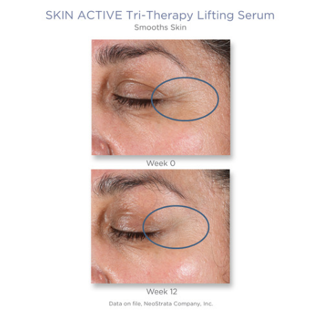 tri lifting serum b and a