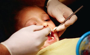 child dental visit