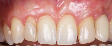 Dallas, DFW, Coppell periodontist, Gum recession, Gum disease, Gum graft, Dr. Ted Ling, Dr. Jenny Tai