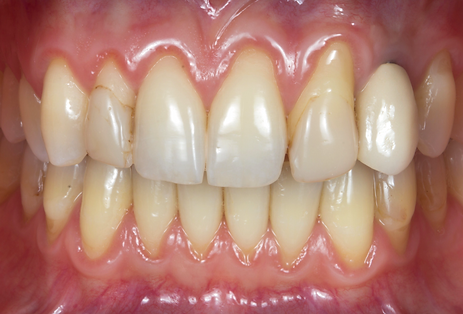 Dallas, DFW, Coppell periodontist, Gum recession, Gum disease, Gum grafting, Dr. Ted Ling, Dr. Jenny Tai