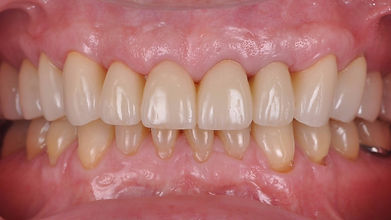 Dallas, DFW, Coppell periodontist, Gum disease, Crown Lengthening, Dr. Ted Ling, Dr. Jenny Tai