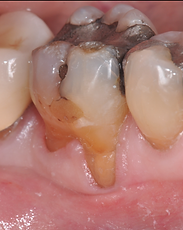 Dallas, DFW, Coppell periodontist, Gum recession, Gum disease, Dr. Ted Ling, Dr. Jenny Tai