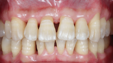 Dallas, DFW, Coppell periodontist, Dental implant, Gum disease, Dr. Ted Ling, Dr. Jenny Tai