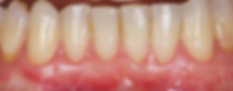 Dallas, DFW, Coppell periodontist, Gum recession, Gum disease, Gum graft, Dr. Ted Ling, Dr. Jenny Tai
