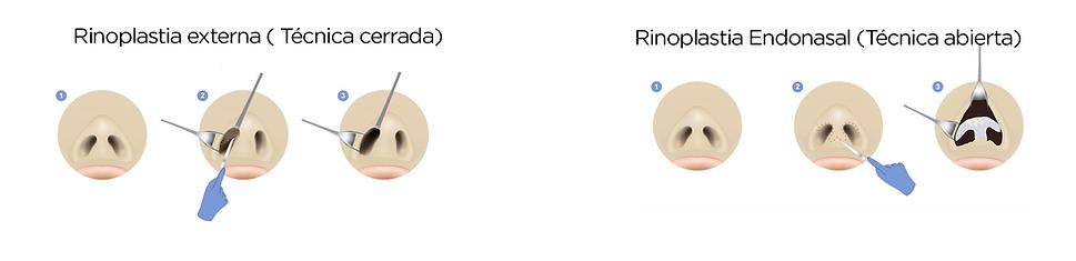 Rinoplastia Cerrado Naturales