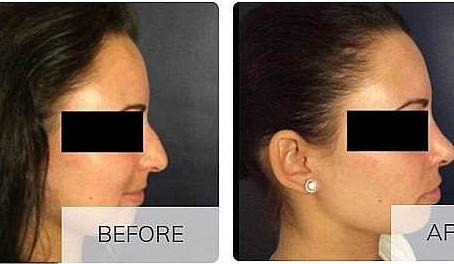 ¿Por qué hay tantas mujeres que realizan trabajos de seguimiento de la nariz?