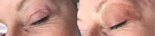 Eyelid Skin Tightening at Face Envy