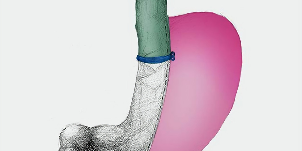 Banded Sleeve Gastrectomy: Is there a Method to this Madness?