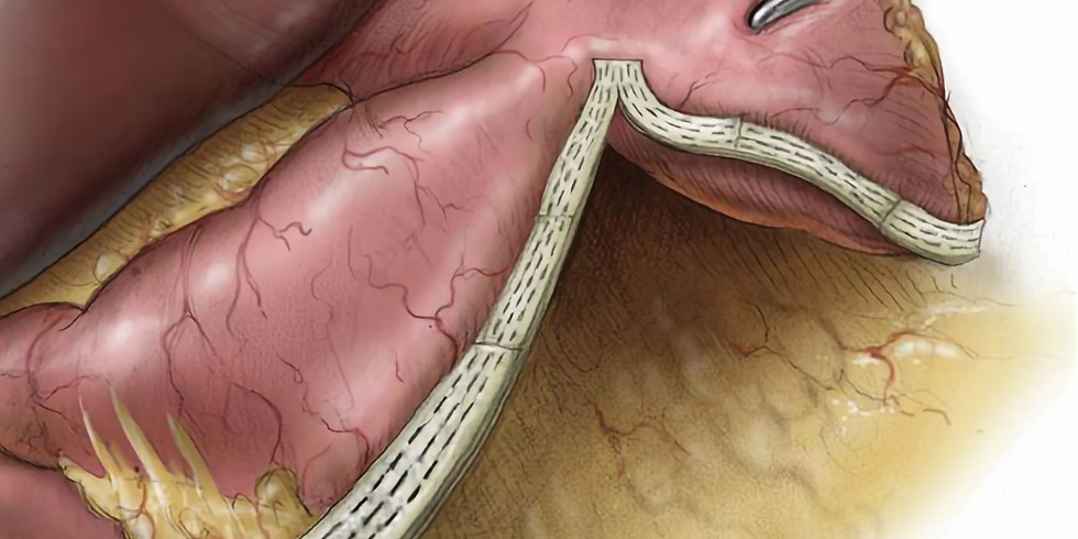 Buttressing the Gastric Staple Line in Bariatric Surgery