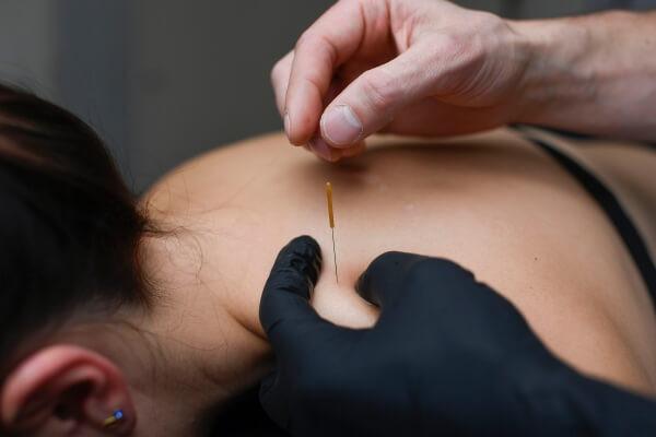 Triggerpunkttherapie und Dry Needling