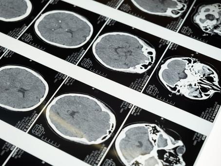 Beyin, Bilinç ve Bilinçsizlik Arasında Nasıl Geçiş Yapar?