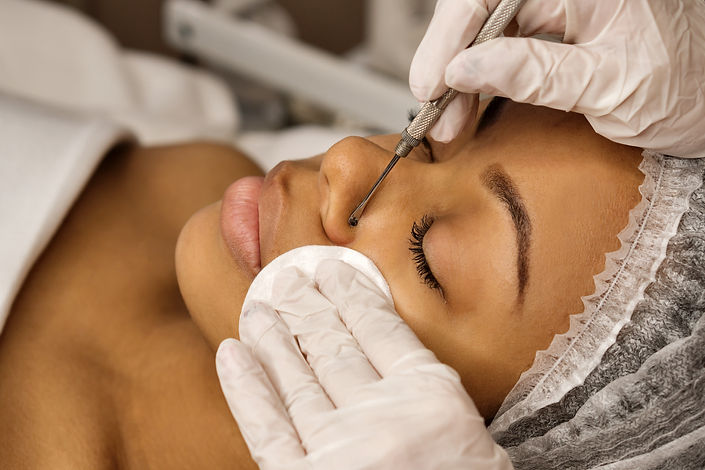 Procedure mechanical face cleaning in beauty salon. African american model getting cosmeti