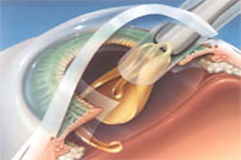 Cataract implant at Marion Eye Center in Marion, OH