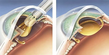 Cataract eye surgery at Marion Eye Center in Marion, OH