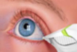 Tear lab testing at Marion Eye Center in Marion, OH