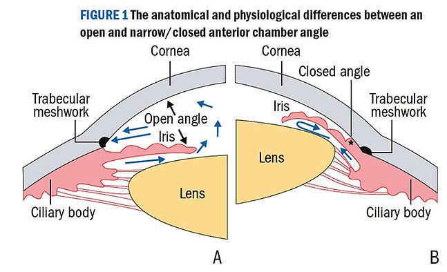 Types of glaucoma at Marion Eye Center in Marion, OH