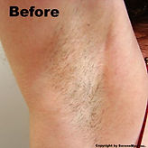laser hair removal medical salon spa Manhattan midtown New York NYC  under arm best results