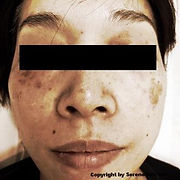 laser hair removal medical salon spa Manhattan midtown New York NYC remove spots face asian face body pigment