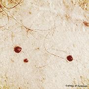 laser hair removal medical salon spa Manhattan midtown New York NYC cherry moles angioma capillaries vein face body